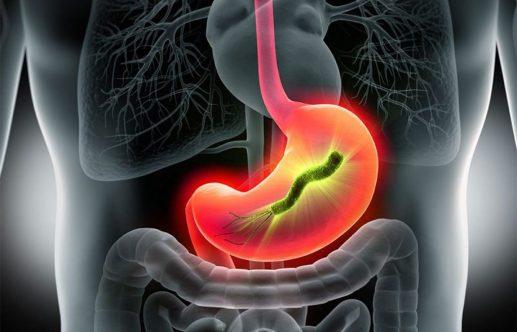 Helicobacter pylori treatment image